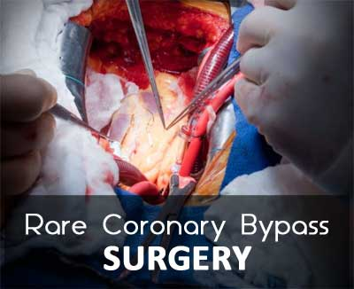 Hyderabad: Coronary bypass surgery on Mesocardio Heart disorder performed by a doctor