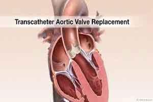 American College of Cardiology releases TAVR guidance 2017