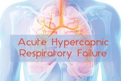 Ventilatory management of acute hypercapnic respiratory failure in adults: BTS , ICS guidelines