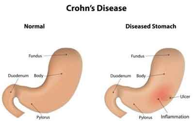 Antifungals and probiotics may play a key role in treatment of Crohn's disease in future