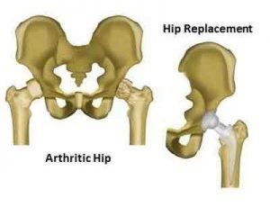 Outcomes of Hip replacement surgery different for men and women: Study
