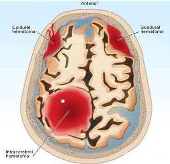 Guideline for reversal of antithrombotics in intracranial hemorrhage