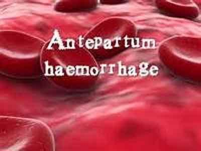 Treatment For Ante Partum Haemorrhage: Indian Guidelines