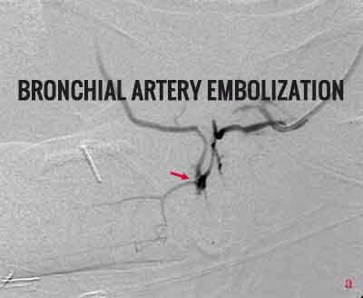 Bronchial Artery Embolization in Massive Haemoptysis: Standard treatment guidelines.