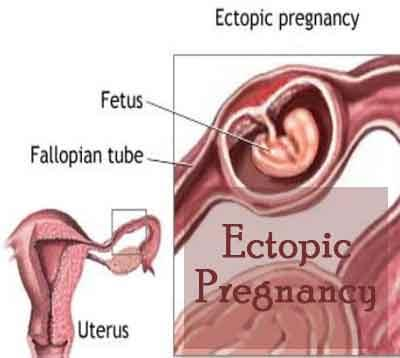 Standard Treatment Guidelines For Ectopic Pregnancy