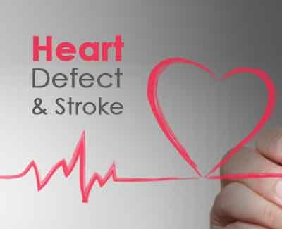 Closure Not Recommended for People with Heart Defect and Stroke: American Academy of Neurology