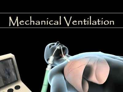 New guidelines for discontinuing mechanical ventilation in ICU