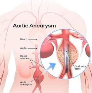 Fluoroquinolone exposure associated with Aortic Aneurysm: JACC Study