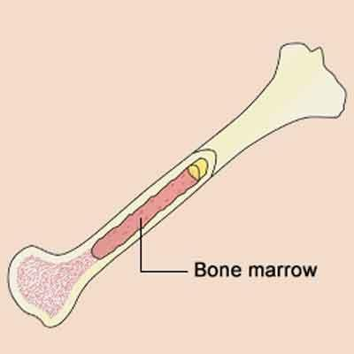 Possible treatment for pre-malignant bone marrow disorders: Study