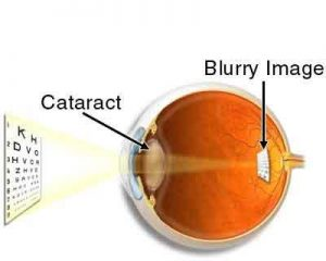 Preoperative testing does not increase safety  in cataract surgery