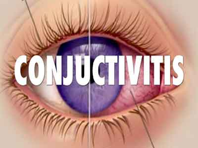Standard Treatment Guidelines for Conjunctivitis