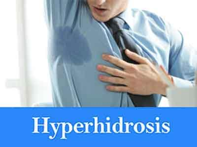 Sweat too much? You might have a treatable medical condition called hyperhidrosis