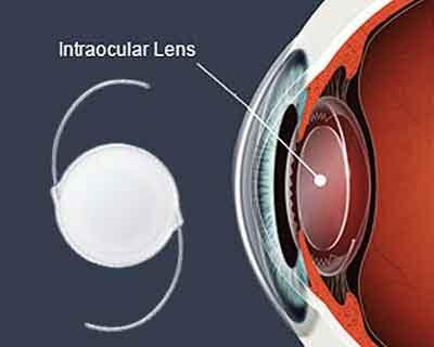 Intraocular lenses can benefit LASIK reject patients