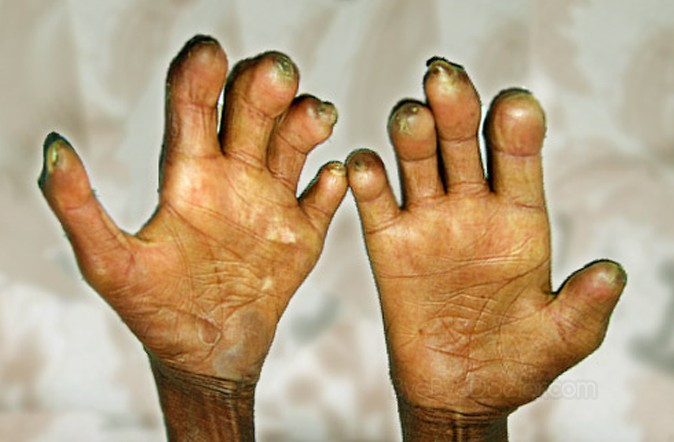 A vaccine THAT alleviates neurologic complications of leprosy