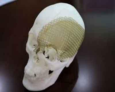 China: Doctors use 3D printed part in skull surgery