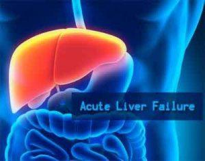 Acute Liver Failure – Standard Treatment Guidelines