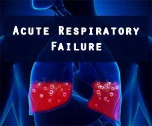 Critical care Guidelines: Acute Respiratory Failure management
