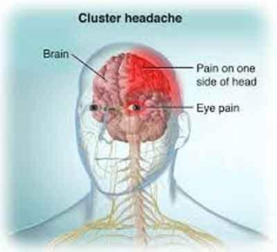 Cluster headaches: Painful but treatable