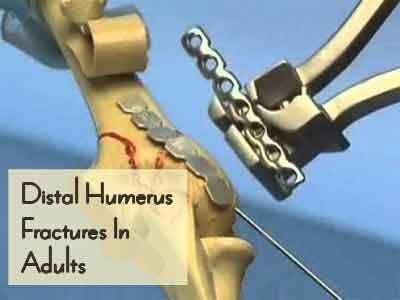 Distal Humerus Fractures In Adults – Standard Treatment Guidelines