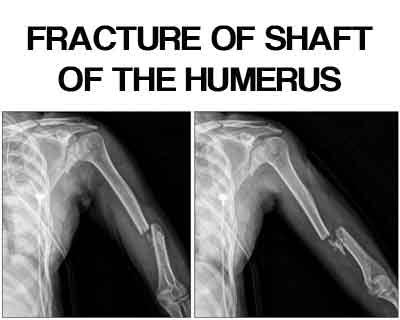 Fracture of shaft of the humerus – Standard Treatment Guidelines