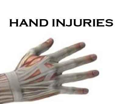 Hand Injuries: Standard Treatment Guidelines