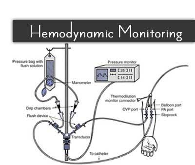 Hemodynamic Monitoring In The ICU – Standard Treatment Guidelines