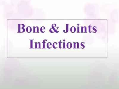 The Infection of Bones And Joints – Standard Treatment Guidelines