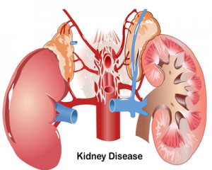 Tolvaptan delays kidney failure in polycystic kidney disease
