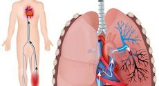 Diagnosing Pulmonary Embolism: Lung Ultrasound outperforms Wells score