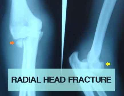Radial Head Fracture - Standard Treatment Guidelines