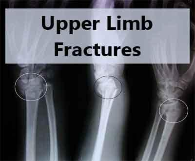 Upper Limb Fractures: Fracture of both bones forearm in adults - Standard Treatment Guidelines