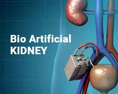 Coming Soon: Bioartificial kidney to replace dialysis and transplantation
