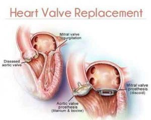 Sutureless Valve Replacement Surgery performed at Global Hospitals