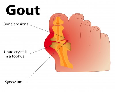 Management of Acute and Recurrent Gout: ACP latest guidelines