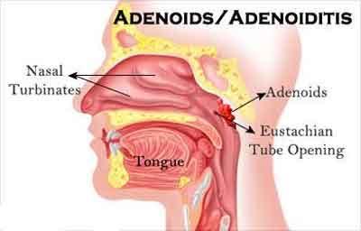 Adenoiditis – GOI Standard Treatment Guidelines