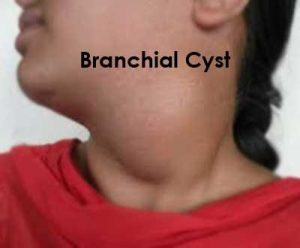 Branchial Cyst - Standard Treatment Guidelines