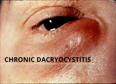 Chronic Dacryocystitis - Standard Treatment Guidelines