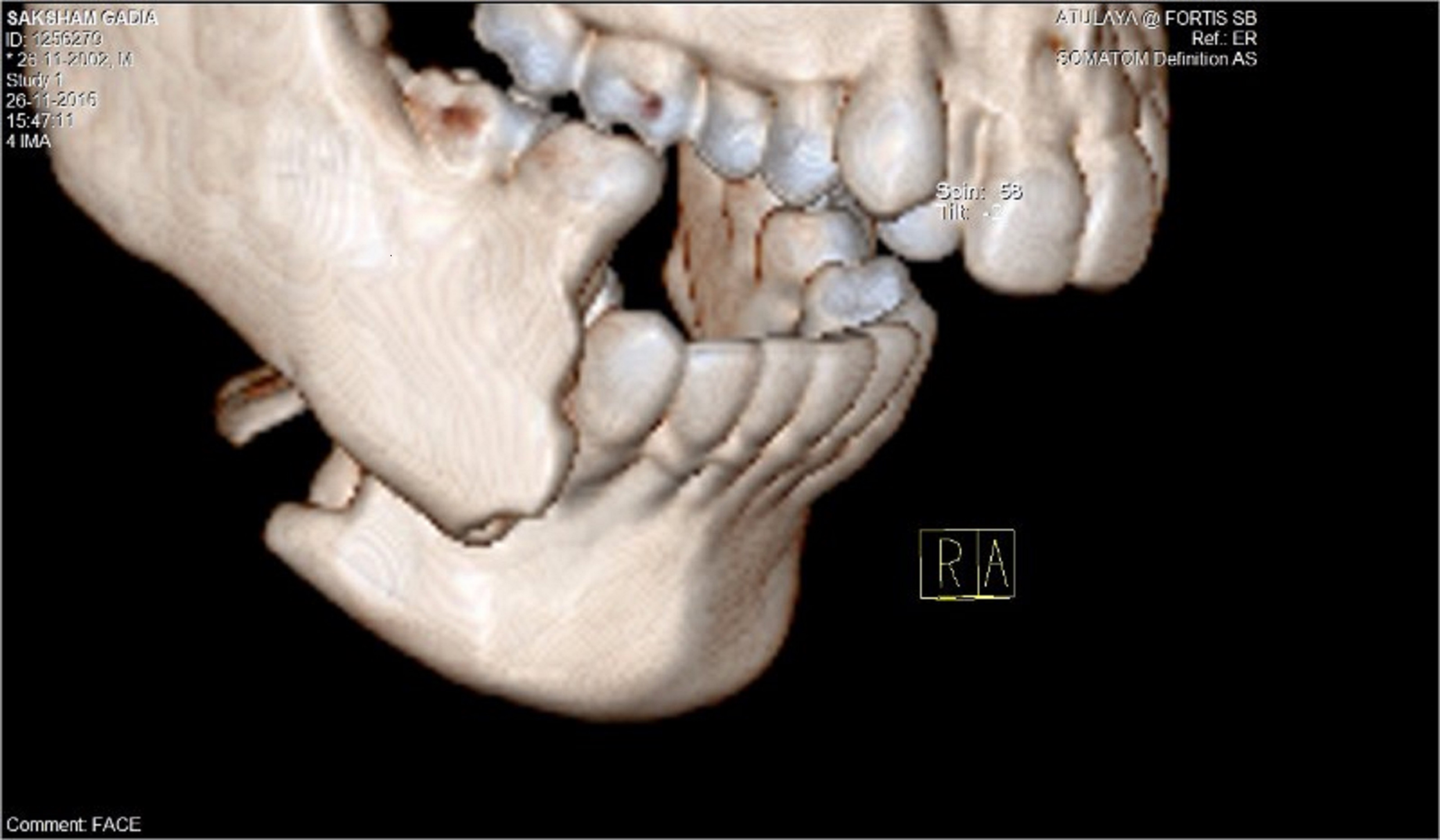Ct Scan Of Patient Showing Fractured Lower Jaw Bone Speciality