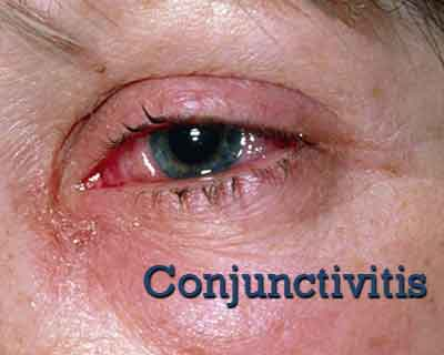 Conjunctivitis- Standard Treatment Guidelines