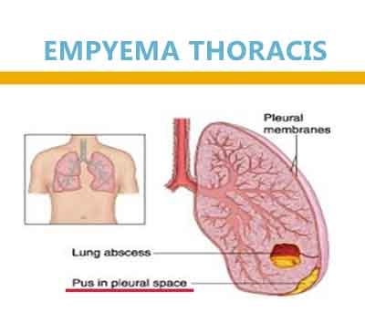 Empyema Thoracis in children : Govt. of India Guideline