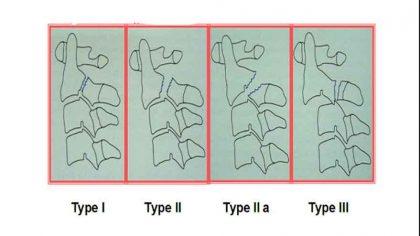 hangman-fractures