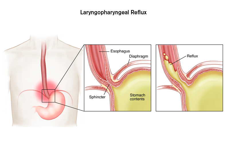 GOI Standard Treatment Guidelines for Laryngopharyngeal reflux (LPR)