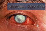 Microbial Keratitis - Standard Treatment Guidelines