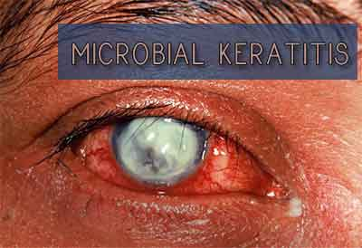 Microbial Keratitis – Standard Treatment Guidelines