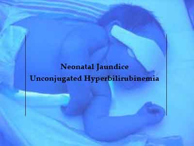 Filtered Sunlight Phototherapy inexpensive solution for jaundice in Neonates