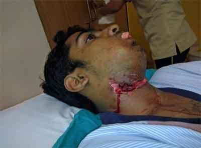 Fortis doctors restore face of 14 year old impaled by fence