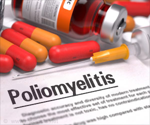 Poliomyelitis- Standard Treatment Guidelines