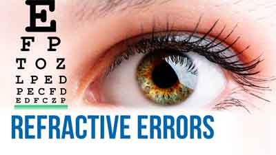 Refractive Errors – Standard Treatment Guidelines
