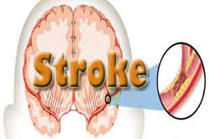 India urged to take better initiatives at stroke management