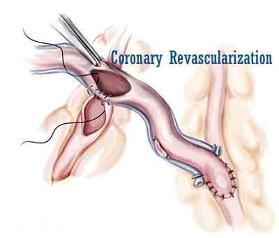 New appropriate use criteria for coronary revascularization released